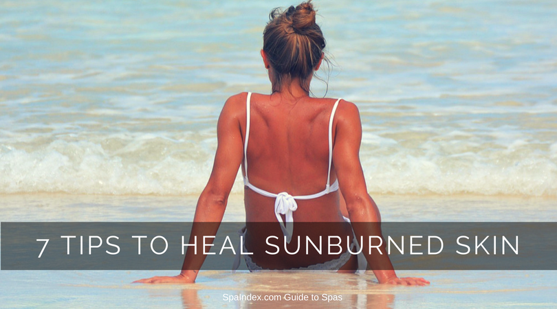 7 Tips for Sunburned Skin