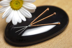 Top 10 Things Everyone Should Know About Acupuncture